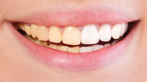 Stained Teeth: What they Mean, and How to Prevent Them